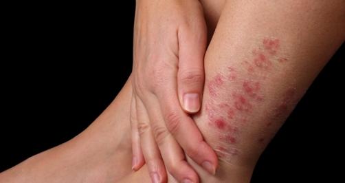 蚊 に 刺され る 腫れる なんでこんなに腫れるの!? 蚊に刺されが「ヒドくなる人の体質」とは?